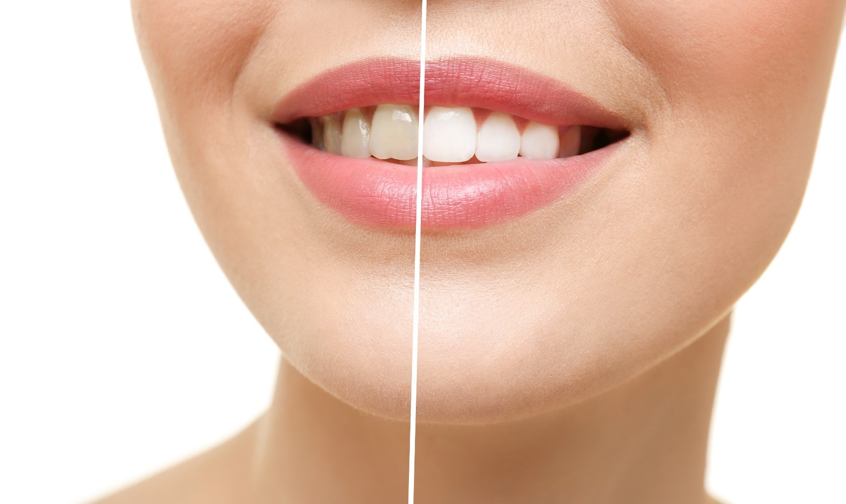Teeth Whitening: How Does It Work?